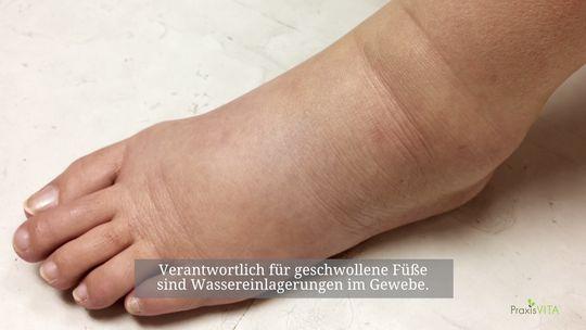 17f9463b434860 Geschwollene Füße  Ursachen und Behandlung
