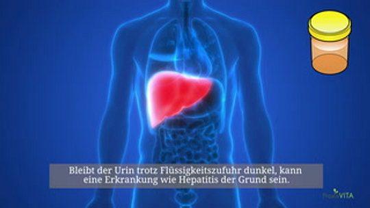 Dunkler Urin Ursachen Und Behandlung Praxisvitade