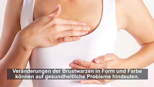 Nach innen gewachsene brustwarzen